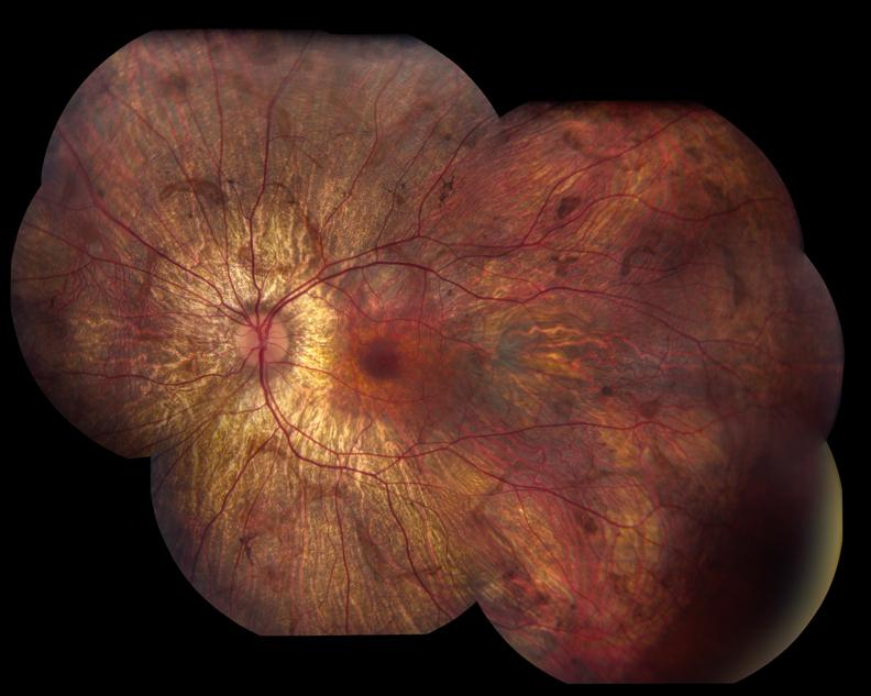Figure 6: Fundus Photo