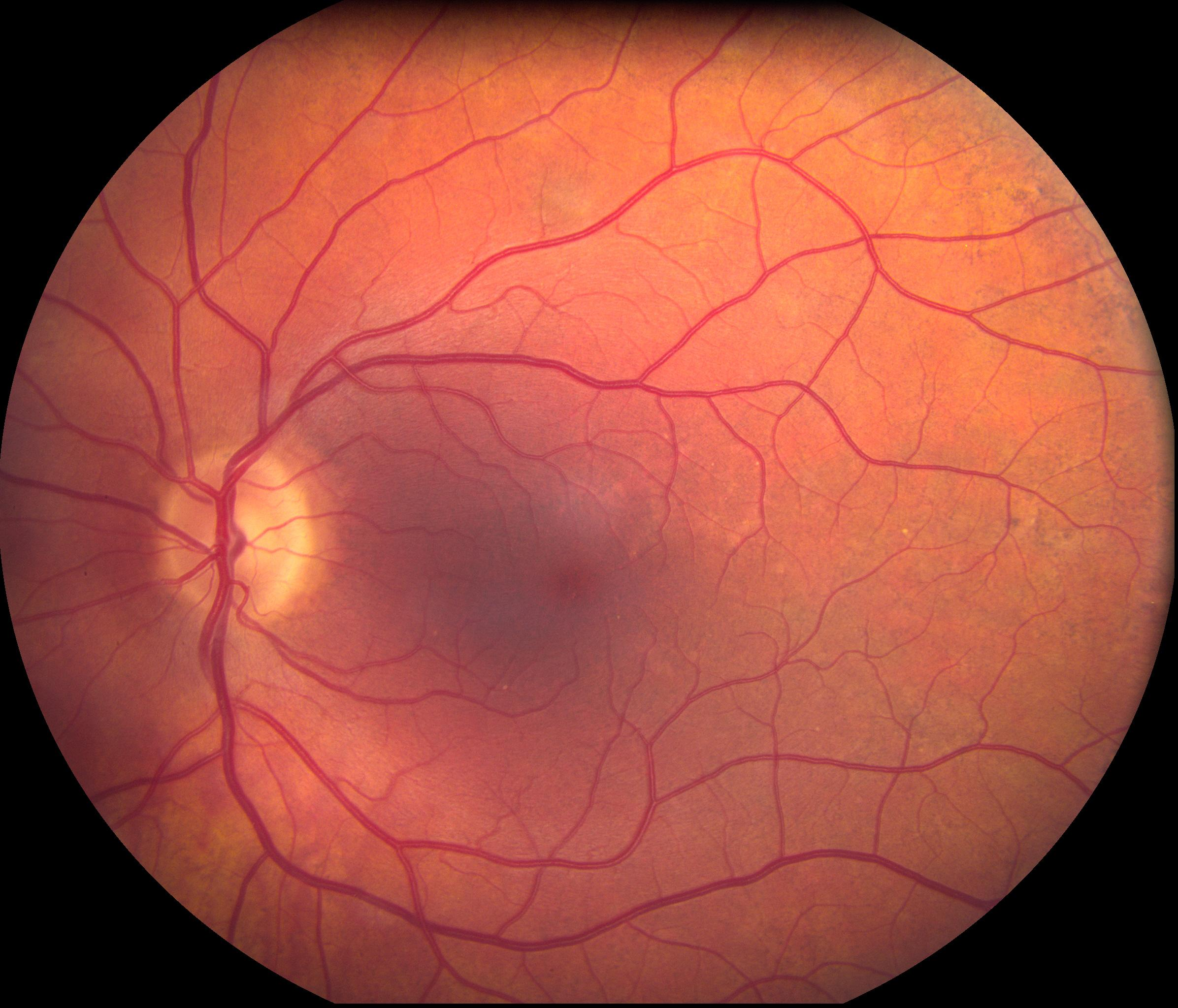 Figure 2: Fundus Photo