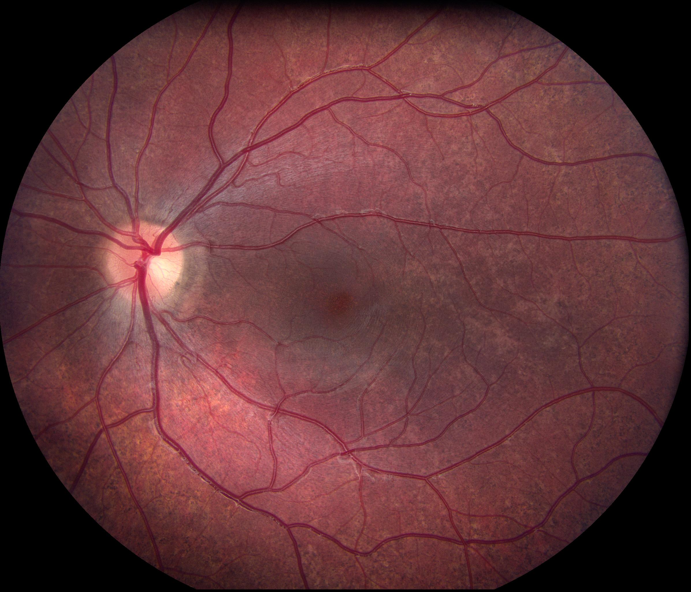 Figure 3: Fundus Photo
